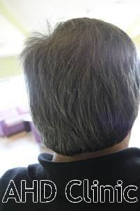 With local or general anesthesia, we extract adequate number of grafts. When long hairs released, donor area will be covered up as in below picture.