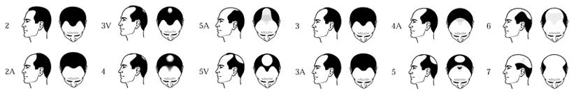 hair-lost-chart